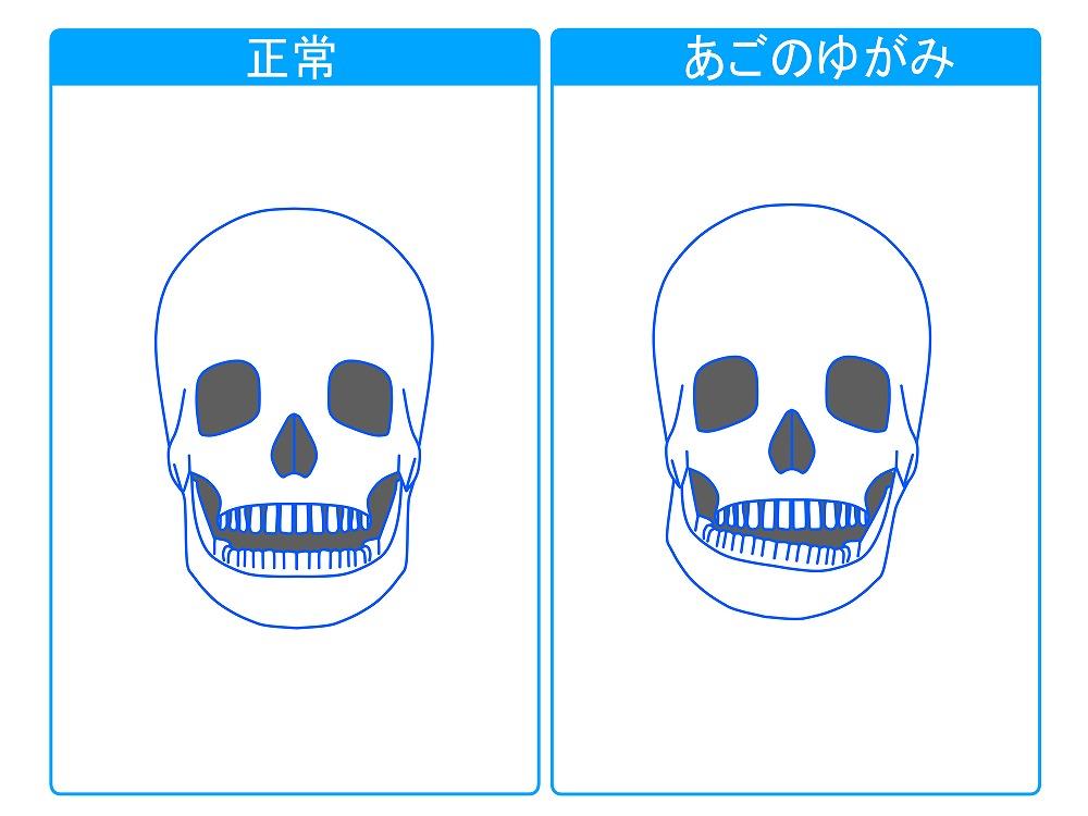 顎へのダメージ